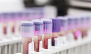What the Doctor Ordered: Improving the Use and Value of Laboratory Testing
